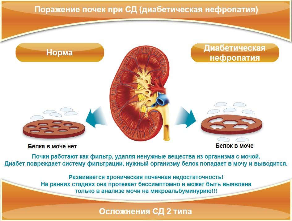 Печень человека при сахарном диабете